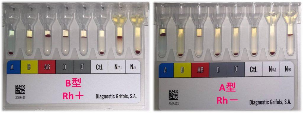 写真 血液型検査
