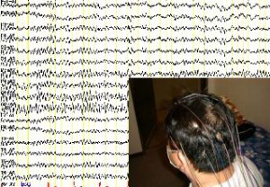 写真 脳波
